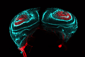 Male Drosophila genital imaginal disc during the larval stage showing cells about to undergo mesenchyme-to-epithelial transitions